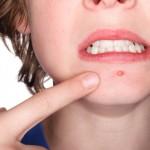 peau bouton acné